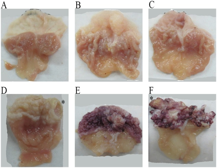 The gross mouse gastric specimens In the control group (A) , the mouse fore-head gastric mucosa was smooth, and the glandular stomach had intact mucosa, with obvious mucosal folds. In the omeprazole-treated groups (B) , low dose omeprazole; and (C) , high dose omeprazole), there existed papillary eminences in the fore-gastric mucosa, and the mucosal folds of the glandular mucosa were markedly shallower, especially in the high-dose group. In the MNNG-treated group (D) , ulcerative lesions occurred in the fore-stomach, with obvious mucosal hypertension, and the glandular gastric folds became shallower. In the groups treated by MNNG and omeprazole (E) , MNNG + low dose omeprazole; and (F) , MNNG + high dose omeprazole), there existed many eminent lesions in the fore-stomach, and the mucosal folds of the glandular stomach disappeared. The typical lesions in the omeprazole-treated groups were marked with '*'. MNNG, N-methyl-N'-nitro-N-nitrosoguanidine.