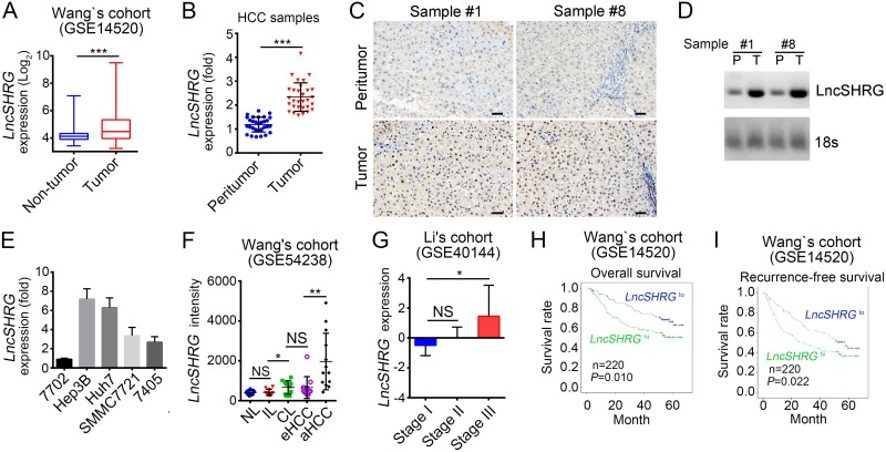 LncSHRG is highly expressed in HCC (A) Analysis of lncSHRG expression in peritumor and tumor tissues according to the microarray data in Wang's cohort (GSE14520). (B) 30 pairs of peritumor and tumor HCC samples were collected. Then LncSHRG expression levels were analyzed in these sample tissues by RT-qPCR. Fold changes were normalized to endogenous ACTB . ( C) LncSHRG expression in peritumor and tumor tissues of sample #1 and #8 was checked by RNA hybridization in situ with biotin-labeled lncSHRG probes. Scale bars, 100μm. (D) Total RNAs were extracted from peritumor and HCC samples. LncSHRG and 18S rRNA (loading control) was examined by Northern blot. P: peritumor; T: tumor. (E) Total RNAs were extracted from indicative human HCC cell lines and lncSHRG expression was checked by RT-qPCR. Fold changes were normalized to endogenous ACTB . (F) Higher expression of lncSHRG in HCC samples. LncSHRG expression was analyzed with R language and Bioconductor according to the microarray data in Wang's cohort (GSE54238). NL: normal livers; IL: chronic inflammatory livers; CL: cirrhotic livers; eHCC: early HCC; aHCC: advanced HCC. (G-I) LncSHRG expression levels were positively correlated with clinical stages and poor prognosis by expression analysis (G) and Kaplan–Meier survival analysis (H and I) according to the microarray data in Li's cohort (GSE40144) and Wang's cohort (GSE14520). * p