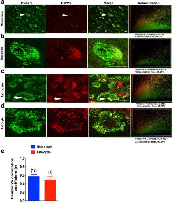 KCa3.1 and TRPV4 co-localized in primary cultured astrocytes and mouse brain cortex. Double immunofluorescence images of KCa3.1 (green) and TRPV4 (red) in normal mouse brains ( a , b ), and primary cultured astrocytes ( c , d ). Note the strong co-localization indicated by merge yellow fluorescence, quantification of the co-localization observed in experiments as shown in g. ( e ) The histograms represent the ratio of the mean Pearson correlation coefficient calculated from the co-labeling in a number of samples, as indicated above the bar. Scale bar: 25 μm