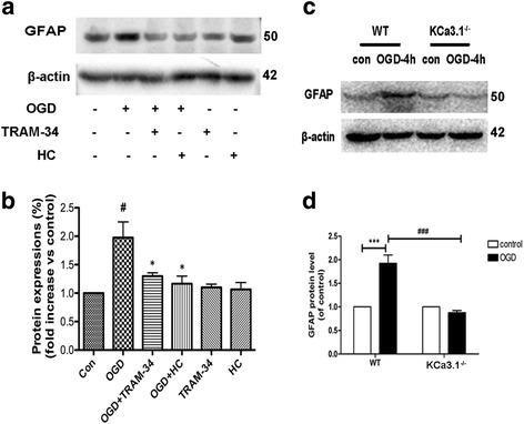 Involvement of KCa3.1 in OGD-induced reactive astrogliosis. a , b Representative western blot showing GFAP expression in cultured astrocytes treated with OGD for 4 h in the presence of 1 μM TRAM-34 and 10 μM HC 067047. Quantification of western blot for GFAP expression ( n = 3). Data are presented as means ± SEM. # p