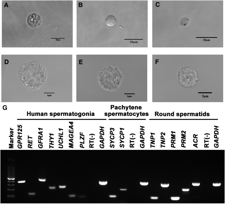 Morphological and Phenotypic Characterization of Freshly Isolated Human Spermatogonia, Pachytene Spermatocytes, and Round Spermatids (A–C) Phase-contrast microscope revealed the morphology of the freshly isolated human pachytene spermatocytes (A), spermatogonia (B), and round spermatids (C) of OA patients. (D–F) DIC microscope showed the morphological characteristics of the freshly isolated human pachytene spermatocytes (D), spermatogonia (E), and round spermatids (F) of OA patients. Scale bars, 20 μm (A–C) and 5 μm (D–F). (G) RT-PCR revealed the transcripts of GPR125 , RET , GFRA1 , THY1 , UCHL1 , MAGEA4 , and PLZF in the fleshly isolated spermatogonia, the expression of SYCP3 and SYCP1 in pachytene spermatocytes, and mRNA of TNP1 , TNP2 , PRM1 , PRM2 , and ACR in round spermatids. RNA without RT (RT-) but with PCR of GAPDH primers was utilized as negative controls, and GAPDH served as loading controls of total RNA.