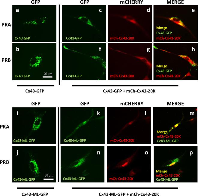 Cx43 forward trafficking is modulated by Cx43-20 K in PRA and PRB Cells. Representative images of human myometrial cells hTERT-HM A/B transfected with Cx43-GFP ( a,b ) or Cx43-GFP + mCh-Cx43-20 K ( c–h ) or Cx43-ML-GFP ( i,j ) or Cx43-ML-GFP + mCh-Cx43-20 K ( k–p ) and induced for PRA ( a,c,d,e,i,k,l,m ) or PRB ( b,f,g,h,j,n,o,p ) expression for 24 h and stimulated with P4 (100 nM) for 2 h. Results showed that Cx43 forward trafficking is restricted in the PRB cells transfected with Cx43-GFP ( b ) however it was rescued by co-transfection of Cx43-GFP and mCh-Cx43-20 K ( f,g,h ). The lower panel shows that the forward trafficking of Cx43 is blocked in both PRA and PRB cells when transfected with Cx43-ML-GFP (which is unable to express Cx43-20 K, i,j ), while it is rescued when Cx43-ML-GFP is co-transfected with mCh-Cx43-20 K ( k–p ). GFP is represented with green fluorescence, mCh-Cx43-20 K with red and their co-localization with yellow colour. Scale bar = 20 μm.