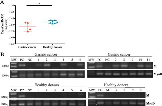 Expression of miR-335 and DNA methylation of the promoter region of MEST gene in plasma from gastric cancer patients and healthy donors. a Cq of miR-335 expression among four gastric cancer plasma samples and seven plasma samples from healthy donors. Data were transformed to logarithmic values (−log). Results indicate the mean ± SD. b Illustrative results of MSP in gastric cancer and healthy donor's plasma samples. MyoD was used as a control of DNA conversion. MW, weight marker; M, PCR product with primers specific for methylated promotor region of miR-335 host gene (MEST); PC, positive control of methylation (methylated gastric cancer cell line); NC, negative control of methylation (peripheral blood lymphocytes)