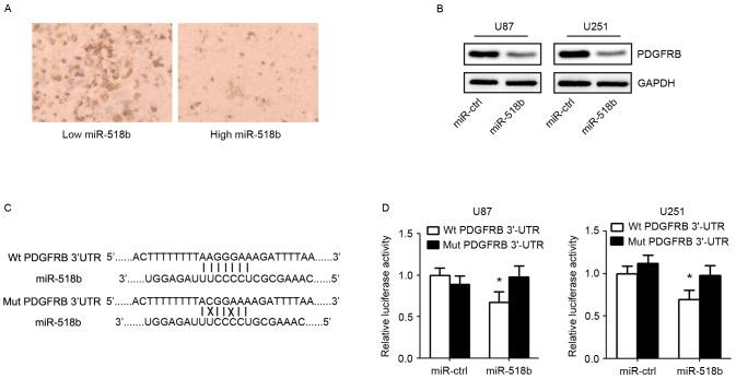 PDGFRB is a direct target gene of miR-518b. (A) Inverse relationship between the expression of miR-518b and PDGFRB was detected in GBM specimens (magnification, 200x). (B) Western blot analysis of PDGFRB expression in U87 and U251 cells 48 h post-transfection with miR-518b and miR-ctrl. (C) PDGFRB mRNA 3′UTR contains binding sites for miR-518b. (D) U87 and U251 cells were co-transfected with the <t>dual-luciferase</t> <t>reporter</t> plasmid carrying the Wt or Mut 3′UTR sequences of PDGFRB and miR-518b or miR-ctrl mimics. A luciferase reporter <t>system</t> analysis was performed. Data are presented as the mean ± standard deviation (n=5). *P