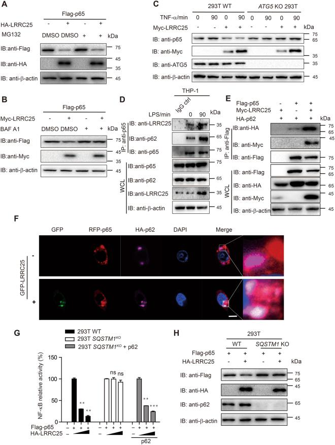 LRRC25 Promotes the Degradation of p65/RelA through Autophagy. ( A ) The expression plasmids of Flag-p65/RelA and HA-LRRC25 were transfected into HEK293T for 24 h. Cells were either untreated or pretreated for 6 h with the proteasome inhibitor MG132 (5 μM), and then cells lysates were subjected to immunoblot analysis. ( B ) HEK293T cells were transfected with the expression plasmids of Flag-p65/RelA and Myc-LRRC25 and either untreated or treated for 6 hrs with Bafilomycin A1 (Baf A1) (100 μM). Cells were harvested 24 h after transfection and analyzed by immunoblot. ( C ) 293T WT cells or ATG5 KO 293T cells were transfected with Myc-LRRC25, along with TNF-α treatment. Cells were harvested 24 h after transfection and analyzed by immunoblot with the indicated antibodies. (D) THP-1 cells were treated with or without LPS and cells extracts were harvested for Co-IP with anti-p65/RelA, followed by IB analysis with anti-LRRC25 or anti-p62 antibodies. Cell extracts without treatment were used as IgG control. ( E ) Flag-p65/RelA, HA-p62 and Myc-LRRC25 expression plasmids were transfected into HEK293T cells. Cells extracts were harvested 24 h after transfection and subjected to immunoprecipitation (IP) and immunoblot (IB) analysis. ( F ) 293T cells were transfected with HA-p62 or GFP-LRRC25 and RFP-p65 for 24 h, and then stained with anti-HA-tag DyLight 650 antibody. DAPI (blue) was used for nuclear staining, Scale bar: 10 μm. ( G ) WT and SQSTM1 KO cells were transfected with a NF-κB-luc reporter plasmid, together with Flag-p65/RelA, an empty vector or HA-LRRC25 and analyzed for NF-κB luciferase activity. Values are means ± SEM of three independent experiments (*p