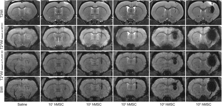 MR images of live rat brains after stereotaxic injection of 20 μl saline or different quantities (from 10 1 to 10 5 ) of SPIO-labeled hMSCs in 20 μl saline into the right striatum. The images were taken immediately after cell transplantation utilizing different MRI pulse sequences—T2WI, T2*WI based on MEDIC, T2*WI based on FLASH 3D, and SWI.