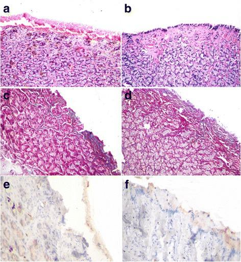 Gastric mucosal defect, dog. a Absence of lining epithelium, presence of bleeding ulcer, and mononuclear inflammatory cell infiltration in periglandular connective tissue in the control group. b Regenerated lining epithelium, hypervascularization of underlying tissue, and presence of mononuclear inflammatory cell infiltration in periglandular connective tissue (H E × 200). c Poorly observed bluish stained connective tissue in mucosa of control ulcer. d Fine fibers of connective tissue below regenerated epithelium in the gastric ulcer with AM graft (Masson's trichrome × 200). e Negative staining of collagen IA1 in the exposed granulation tissue in the control ulcer and f negative staining of subepithelial connective tissue in the gastric ulcer with AM graft <t>(avidin–biotin–peroxidase</t> <t>complex</t> <t>method,</t> hematoxylin counterstain × 400)