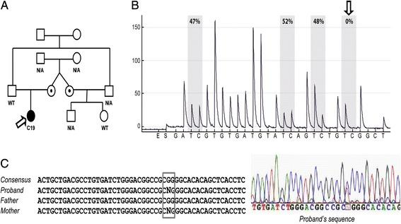 CDKN1C sequence variation in C19 case. In a , the pedigree of C19 is depicted and the proband is indicated by an arrow. As shown, the CDKN1C sequence variation (rs547284149) was inherited from the mother, was also present in the C19 maternal aunt but absent in her daughter who did not show omphalocele. As displayed in. b , this sequence variation determined a non-homogeneous methylation pattern, with a decrease in methylation at the fourth CpG site analyzed by pyrosequencing. The sequence variation and its maternal origin were confirmed by sanger sequencing of KCNQ1OT1 :TSS-DMR: we found a heterozygous non-coding variant G > A at nucleotide 687 (NR_002728.3) ( c )