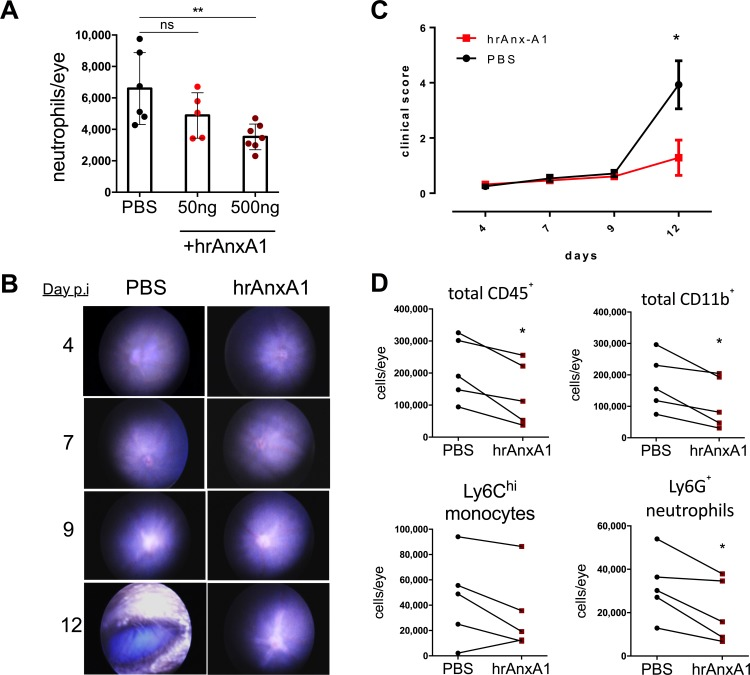 Local administration of hrAnx-A1 suppresses uveitis in mice. (A) Quantification by flow cytometry of neutrophils (CD45 + CD11b + Ly6G + ) infiltrating the eye at peak EIU disease (18 hours post induction) following administration of 2 μL PBS vehicle or hrAnxA1 (50 ng and 500 ng, respectively) by intravitreal injection. Data representative of two independent experiments, n = 5–7 mice ± SEM, **P