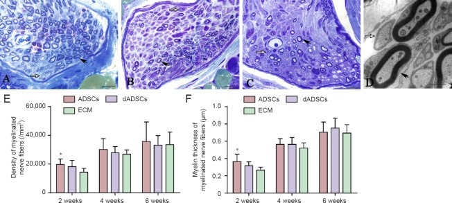 Effects of adipose-derived mesenchymal stem cells (ADSCs), differentiated Schwann-like adipose-derived mesenchymal stem cells (dADSCs) and extracellular matrix (ECM) transplantation on the morphological changes of axons following recurrent laryngeal nerve (RLN) injury. (A–C) RLN in the ADSCs group, the dADSCs group and the ECM group at 2 weeks post-surgery, respectively (toluidine blue staining, light microscopy). (D) The ultrathin transverse section of the RLN as visualized by transmission electron microscopy (ADSCs group). Black arrows point to myelinated axons, while white arrows point to unmyelinated axons. (E, F) For stereological analysis, the density of myelinated fibers (E) and the myelin thickness (F) were quantitatively evaluated and compared by statistical analyses. Data are expressed as the mean ± SEM ( n = 5) and analyzed by one-way analysis of variance followed by Scheffe's post hoc test at each time point. * P