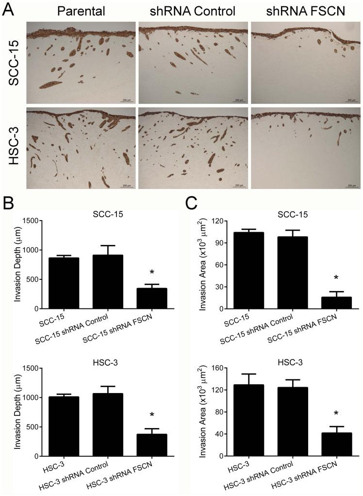 Fascin downregulation inhibits the invasion of SCC-15 and HSC-3 cells in the myoma organotypic invasion model (A) The knockdown of fascin markedly reduced the invasion properties of SCC-15 and HSC-3 cells in the myoma organotypic model when compared with control cells. The invasion depth (B) and the invasion area (C) were significantly reduced for HSC-3 shRNA FSCN cells. *p