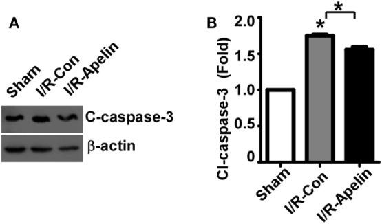 Low dose of apelin-36 attenuates cerebral I/R injury-induced caspase-3 activation in rats. (A) The MCA territory of sham treated rats, I/R model rats and I/R model rats treated with apelin-36 (labeled I/R-Apelin) were lysed in RIPA-DOC buffer. Cell lysates were resolved on 12% Tris–Glycine sodium dodecyl sulfate-polyacrylamide gel electrophoresis. Cleaved caspase-3 was detected by cleaved caspase-3 antibody and β-actin served as an internal control was detected by β-actin antibody. (B) Quantification of cleaved caspase-3 expression. The ratio of cleaved caspase-3 to β-actin was further normalized to the sham treated rats. Values represent mean ± SEM. N = 5, * p