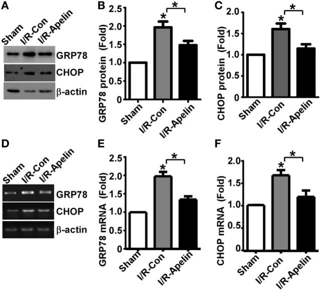 Low dose of apelin-36 inhibits cerebral I/R injury-induced GRP78 and CHOP elevation in rats. (A) Rats were subjected to vehicle or apelin-36 treatment at 2 h after middle cerebral artery occlusion (MCAO) procedure. The brain lysates of MCA territory were resolved on 8–12% Tris–Glycine sodium dodecyl sulfate-polyacrylamide gel electrophoresis. GRP78 and CHOP were detected by GRP78 and CHOP antibodies, respectively. β-actin served as an internal control was detected by β-actin antibody. (B) and (C) Quantification of CHOP and GRP78 protein expression, respectively. Apelin represents apelin-36. (D) Rats were subjected to vehicle or apelin-36 treatment at 2 h after MCAO procedure. The mRNA of MCA territory was extracted and RT-PCR was performed. The PCR products of GRP78 and CHOP were resolved on 1.5% agarose gel, respectively. β-actin was served as an internal control. (E,F) Quantification of CHOP and GRP78 mRNA expression, respectively. Apelin represents apelin-36. Values represent mean ± SEM. N = 5, * p