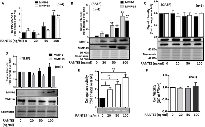 Regulated on activation, normal T expressed, and secreted (RANTES)/CC ligand 5 (CCL5) induces matrix metalloproteinase (MMP)-1 and MMP-13 expression in rheumatoid arthritis synovial fibroblasts (RASFs). (A) Effect of RANTES/CCL5 on MMP-1 and MMP-13 mRNA and (B) protein expression was studied in RASFs. (C,D) Human OASFs and NLSFs were treated with different concentrations of recombinant RANTES/CCL5 (20, 50, and 100 ng/ml) and MMP-1 and MMP-13 expression was analyzed using Western immunoblotting, respectively. Gels described for (B–D) were stained with Commassie Blue stain to ensure equal loading of the supernatants. (E) Effect of RANTES/CCL5 on collagenase activity in RASFs. RASFs were treated with different concentration (20, 50, and 100 ng/ml) of RANTES/CCL5 for 24 h and conditioned media was concentrated using Amicon ® Ultra Centrifugal filters (Millipore) and resolved on polyacrylamide gel loaded with collagen. Zymography image of digested regions representing MMPs activity is shown. Fold changes on developed zymograms was determined using densitometric analysis. (F) Effect of RANTES/CCL5 on the cell viability of RASFs was determined using MTT assay. RASFs were treated with RANTES/CCL5 (20, 50, and 100 ng/ml) for 24 h. Cell viability of cultured RASFs in the presence of RANTES/CCL5 was measured by optical densities at 570 nm. Values are represented as mean ± SE from three to four independent experiments using cells from different donors under similar conditions. * p