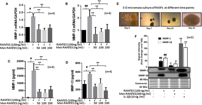 Met-RANTES inhibits regulated on activation, normal T expressed, and secreted (RANTES)/CC ligand 5 (CCL5)-induced matrix metalloproteinase (MMP)-1 and MMP-13 expression in rheumatoid arthritis synovial fibroblasts (RASFs). (A,B) Effect of Met-RANTES on RANTES/CCL5-induced MMP-1 and MMP-13 mRNA and (C,D) at protein levels was determined using qRT-PCR and ELISA, respectively. RASFs were pretreated with Met-RANTES (50, 100, and 200 ng/ml) for 30 min followed by stimulation with RANTES/CCL5 (100 ng/ml) for 24 h. (E,F) Human RASFs were cultured in three-dimensional (3D) micromass for 21 days to form synovial tissue-like architect, followed by pretreatment with or without Met-RANTES for 30 min and then stimulation with RANTES (100 ng/ml) for 24 h. Interleukin (IL)-1β (10 ng/ml) 24 h stimulated RASF micromass were used as the positive control. Conditioned media was concentrated using Amicon ® Ultra Centrifugal filters (Millipore) and MMP-1 and MMP-13 production was analyzed using Western immunoblotting. Densitometry was performed to determine the relative changes. Values are represented as mean ± SE from three to four independent experiments using cells from different donors. # p