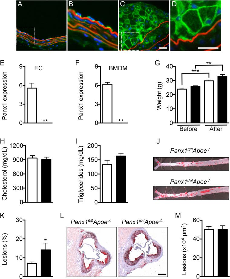 Targeted deletion of Panx1 in endothelial and monocytic cells favors atherosclerotic plaque development. Representative images of Panx1 immunofluorescent staining in ECs of a mouse carotid artery ( A and B ) and in macrophage foam cells within a carotid atherosclerotic lesion ( C and D ). Nuclei were stained with DAPI (blue) and elastic laminae were visualized with Evans Blue (red). Scale bars represent 50 or 25 μm, respectively. Panx1 expression in ECs ( E ) and BMDMs ( F ) of Panx1 fl/ fl Apoe −/− (white bars) and Panx1 del Apoe −/− (black bars) mice was assessed by real-time qPCR (n = 6). ( G ) Weights of Panx1 fl/fl Apoe −/− and Panx1 del Apoe −/− mice before and after 10 weeks of HCD (n = 10). Serum total cholesterol ( H ) and TG ( I ) levels in Panx1 fl/fl Apoe −/− and Panx1 del Apoe −/− mice after 10 weeks of HCD (n = 10). Sudan-IV staining ( J ) and quantification of atherosclerotic lesion extent ( K ) in the thoracic-abdominal aortas and the aortic roots ( L and M ) of Panx1 fl/fl Apoe −/− and Panx1 del Apoe −/− mice after 10 weeks of HCD (n = 10). Scale bar represents 200 μm.