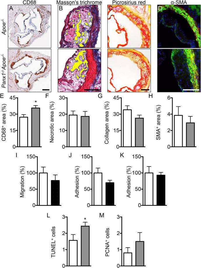 Reduced atherosclerotic plaque stability in mice lacking Panx1. Representative images and quantification of (immuno-)stainings for CD68 ( A , E; brown signal), necrotic core ( B , F; yellow-marked acellular areas), collagen ( C , G; red signal) and α-SMA ( D , H; green signal) performed on aortic roots of Apoe −/− (white bars) and Panx1 −/− Apoe −/− (grey bars) mice after 5 weeks of HCD (n = 10). MCP-1-induced chemotaxis ( I ) and adhesion onto collagen-coated ( J ) or fibronectin-coated ( K ) surfaces of Panx1 fl/fl Apoe −/− (white bars) and Panx1 del Apoe −/− (black bars) BMDMs (n = 6). Number of apoptotic cells ( L ) using TUNEL staining or proliferating cells ( M ) using PCNA staining performed on aortic roots of Apoe −/− (white bars) and Panx1 −/− Apoe −/− (grey bars) mice after 5 weeks of HCD (n = 10). Scale bars represent 200 μm for A , or 100 μm for B , C , and D .