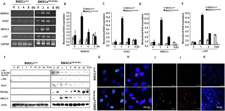 Higher expression of pluripotency markers and cardiac lineage-associated markers in BMSCs FIR 50 min . ( A ) Representative agarose gel images of RT-PCR products for targeted genes in BMSCs con and BMSCs FIR 50 min at 0, 1, 4, and 8 h. ( B – E ) qRT-PCR analysis of relative targeted gene expression in BMSCs con (gray) and BMSCs FIR 50 min (black). ( F ) Western blot analysis of targeted proteins. ( G – J ) Confocal images of Sox2 + (Cyan, 100 μm), Nanog + (Pink, 100 μm), c-Kit + (green, 20 μm), and Nkx2.5 + (red, 20 μm)-expressing cells. ( K ) Overlay of c-Kit + and Nkx2.5 + -expressing cells. Data were analyzed using AVOVA followed by Tukey's post hoc tests and displayed as mean ± SD (n = 6). * P