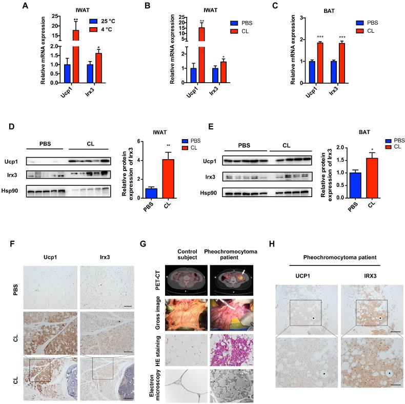 IRX3/Irx3 expression is induced in browning adipose tissues. (A) Relative mRNA levels of Ucp1 and Irx3 in IWAT from mice under cold stress (4 °C) for one week ( n = 6) and at 25 °C ( n = 8). (B–C) Relative mRNA levels of Ucp1 and Irx3 in IWAT (B) and BAT (C) from mice subjected to PBS or CL-316,243 for 10 days. For A–C, gene expression was normalized to 36b4 . (D–E) Protein levels of Ucp1 and Irx3 (left) and the quantification value of Irx3 relative to Hsp90 (right) in IWAT (D) and BAT (E) in the mice subjected to PBS or CL-316,243 treatment. (F) Representative images of immunohistochemical staining in IWAT from mice subjected to PBS or CL-316,243 treatment (scale bar, 50 μm for the upper and middle panels, and 100 μm for the bottom panel). (G) PET-CT, gross image, HE staining (scale bar, 20 μm), and electron microscopy (scale bar, 5 μm) of the browning WAT from pheochromocytoma patients. (H) Representative images of immunohistochemical staining in oWAT from pheochromocytoma patients (scale bar, 100 μm for the upper panel, and 50 μm for the bottom panel). Data were presented as mean ± s.e.m. * P