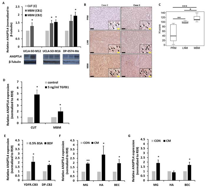 ANGPTL4 expression during melanoma progression to brain metastasis A. ANGPTL4 protein expression level in UCLA-SO-M12, UCLA-SO-M16 and DP-0574-Me cutaneous (CUT) and melanoma brain metastasizing (MBM) variants of first and second IC inoculation cycle was analyzed using Western blotting. The obtained values were normalized to β-Tubulin. The bars represent the relative expression of ANGPTL4 (normalized to RS9), compared to control, untreated cells + SD obtained in one measurement in at least three independent experiments. * P