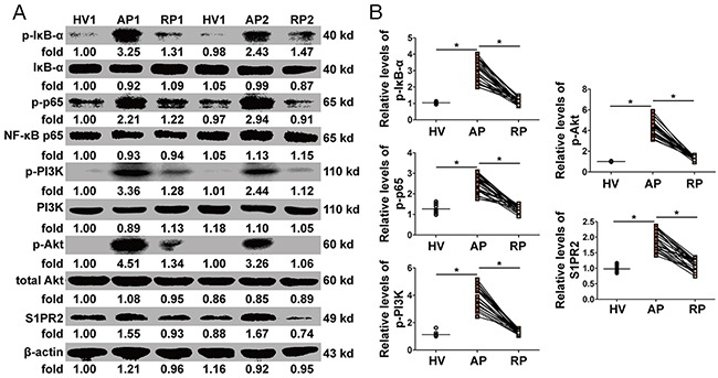 Activation of NF-κB and PI3K/Akt pathways in PBMCs (A) The expression and phosphorylation levels of Foxo3a were tested by WB in two patients before (AP) and after (RP) treatment and in one healthy volunteer (HV). (B) The protein levels of p-IκB-α and p-NF-κB p65 increased dramatically in the AP in AOSC patients and decreased to normal levels after treatment, while the expression of p-PI3K, p-Akt and S1PR2 dramatically decreased after treatment. *, p
