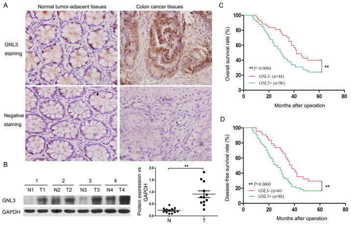 GNL3 expression and its clinical significance in colon cancer. (A) Representative images of immunohistochemical staining for GNL3 in normal, tumor-adjacent tissues and colon cancer tissues. Original magnification, ×200. (B) GNL3 levels in normal, tumor-adjacent tissues (N1-4) and colon cancer tissues (T1-4) were detected by western blotting. According to the quantitative analysis, GNL3 was expressed at significantly higher levels in colon cancer tissues than in normal, tumor-adjacent tissues. (C and D) Overall 5-year and disease-free survival curves for GNL3-negative and GNL3-positive patients with colon cancer according to the Kaplan-Meier analysis. The overall and disease-free survival rates of the GNL3-positive groups were markedly reduced compared with the GNL3-negative groups. **P