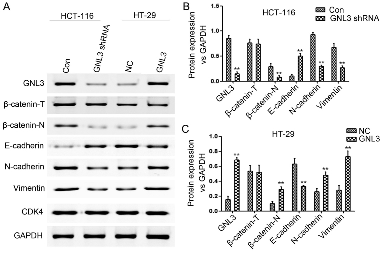 Effects of <t>GNL3</t> knockdown and overexpression on the levels of the EMT-related markers, β-catenin and GNL3 in vitro . (A and B) In HCT-116 cells, GNL3 knockdown (GNL3 shRNA) increased E-cadherin levels and reduced N-cadherin, vimentin, nuclear β-catenin (β-catenin-N) and GNL3 levels compared with controls (Con). (A and C) In HT-29 cells, GNL3 overexpression (GNL3) increased the N-cadherin, vimentin, β-catenin-N and GNL3 levels and reduced the E-cadherin levels compared with the negative controls (NC). **P