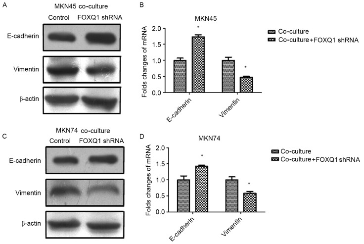 FOXQ1 is essential for TAM-induced EMT in GC cells. (A and B) The expression of mesenchymal marker vimentin was decreased, while the epithelial marker E-cadherin was increased in MKN45-FOXQ1-shRNA cells co-cultured with THP-1 cells. (C and D) The expression of mesenchymal marker vimentin was decreased, while the epithelial marker E-cadherin was increased in MKN74-FOXQ1-shRNA cells co-cultured with THP-1 cells. Values are depicted as the mean ± SD; *P