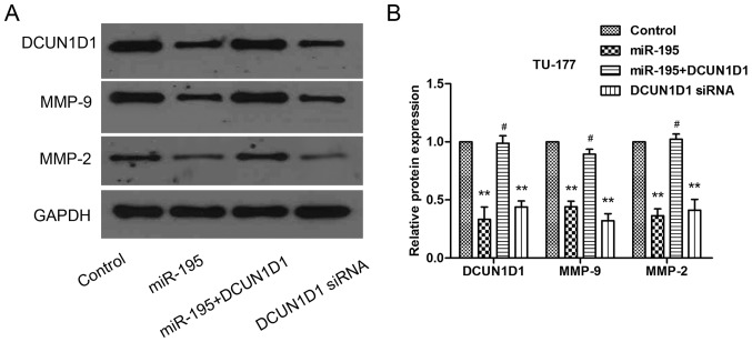 Western blot analysis was performed to confirm the re-expression of DCUN1D1 and other related proteins. (A and B) Western blot was used to evaluate the expression levels of DCUN1D1, MMP-9 and MMP-2 proteins transfected with miR-195, DCUN1D1 siRNA or co-transfected with miR-195 and pcDNA3.1-DCUN1D1 in TU-177 cells. Data are expressed as the mean value ± SD. *P