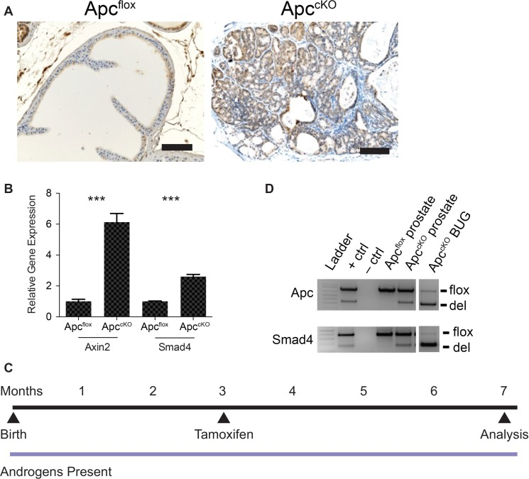 Rationale behind the Apc-Smad4 double knockout (Apc cKO Smad4 cKO ) mouse model ( A ) Smad4 immuno-staining on prostate tissue from Apc flox and Apc cKO mice (scale bars = 100 μm); ( B ) Axin2 and Smad4 quantitative reverse-transcriptase PCR from Apc flox and Apc cKO prostate tissue (error bars represent standard deviation based on technical triplicates; *** P value