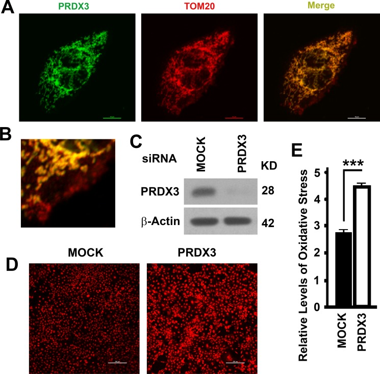 Mitochondrial association and impacts on oxidative stress of PRDX3 ( A ) Representative images showing the colocalization of PRDX3 (green) with TOM20 (red) in BPH-1 cells. Bar = 10 μm. ( B ) A image showing a part of the merge showing in (A). ( C ) A representative immunoblot showing the levels of PRDX3 in BPH-1 cells treated with random (MOCK) or PRDX3-specific siRNA (PRDX3). ( D , E ) Representative images (D) and quantification (E) oxidative stress as indicated by the intensities of red fluorescence after staining with dihydroethidine hydrochloride. Bar = 200 μm. Data are mean and standard deviation of three repeats and differences are tested with Student's T -test. *** P ≤ 0.001.