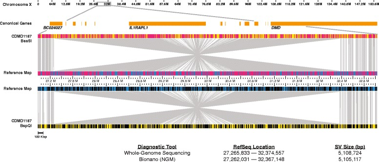 NGM identified a 5.1-Mbp inversion disrupting DMD. Top : X chromosome and Ref-Seq genes ( orange ) present in the magnified region. Visual representation of the inversion where the middle section of the reference ( blue ) and patient ( yellow ) maps have inverted alignments. The sample maps were generated using Nb.BssSI ( top ) and Nt.BspQI ( bottom ) endonucleases. Nicked sites are represented by red (Nb.BssSI) or black (Nt.BspQI) vertical lines in the middle reference and top/bottom sample maps