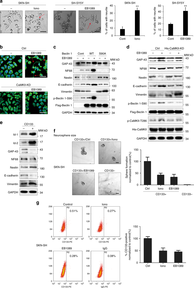 The CaMKII-mediated phosphorylation of Beclin 1 at Ser90 induces the differentiation of neuroblastoma cells. a Ionomycin and EB1089 regulate neuroblastoma cell differentiation. Both cell lines were treated with 1.5 μM ionomycin or 50 nM EB1089 for 7 days and then observed using fluorescence microscopy. Values were shown as the means ± SD of 5 random areas. ** P