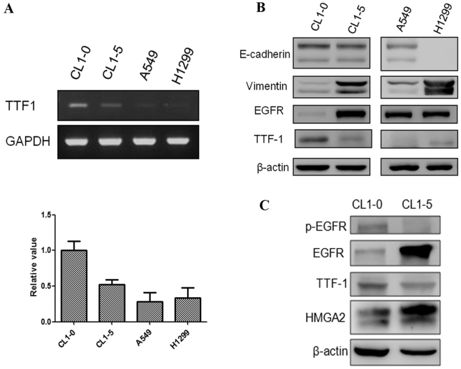 ( A ) Reverse transcription-polymerase chain reaction revealed that TTF-1 expression was significantly higher in CL1-0 cells. ( B ) Western blot analysis validated the difference in tumor aggressiveness between CL1-0, CL1-5, and H1299 cells with different E-cadherin and Vimentin expression. ( C ) The less aggressive cell lines CL1-0 revealed higher TTF-1 expression and lower high-mobility group AT-hook 2 expression. There was reciprocal change in EGFR expression.