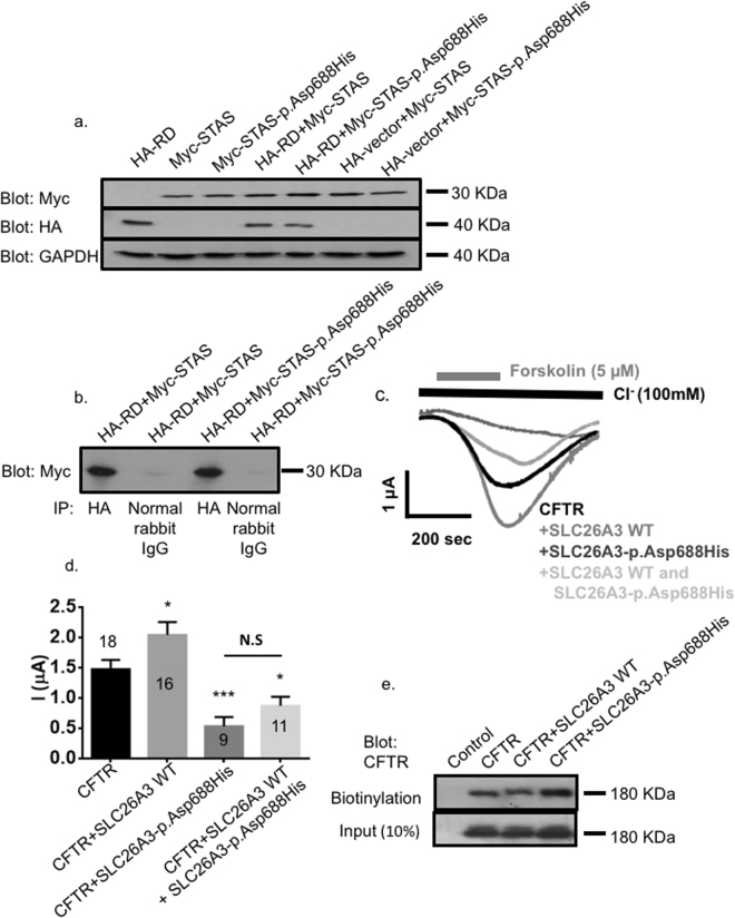 The effects of SLC26A3-p.Asp688His mutation on SLC26A3-CFTR interaction and regulation. COS7 cells were transfected or co-transfected either with the HA-tagged CFTR R domain (HA-RD), with the Myc-tagged wild-type SLC26A3 STAS domain (Myc-STAS), with the Myc-tagged SLC26A3 STAS domain with the c.2062 G > C (p.Asp688His) mutation (Myc-STAS-p.Asp688His), or with an empty HA-vector, as indicated in the corresponding lanes. Cell lysates were used for western blotting ( A ) and immunoprecipitation ( B ). Peptides of correct sizes were detected in the immunoblots by using the anti-Myc, anti-HA, or anti-GAPDH antibodies, as indicated. Immunostaining of GAPDH served as a loading control. In the immunoprecipitation experiments ( B ), cells were co-transfected with CFTR HA-RD and with Myc-STAS or Myc-STAS-p.Asp688His. Anti-HA-antibody or normal rabbit IgG (negative control) were used for the precipitation, and anti-Myc-antibody was used for detection on the blot. Extracts show co-immunoprecipitation of the HA-RD with both the wild-type (Myc-STAS) and the mutant p.Asp688His (Myc-STAS-p.Asp688His) STAS domains. ( C ) Representative traces and ( D ) summary of the current mediated by CFTR-dependent Cl − transport in Xenopus oocytes expressing CFTR alone or co-expressing CFTR with wild-type (WT) SLC26A3, SLC26A3-p.Asp688His or both. The numbers in the columns indicate the number of experiments for each condition. ( E ) CFTR trafficking to the plasma membrane monitored by using a biotinylation assay in HEK293 cells expressing CFTR, wild-type SLC26A3, or SLC26A3-p.Asp688His as indicated.