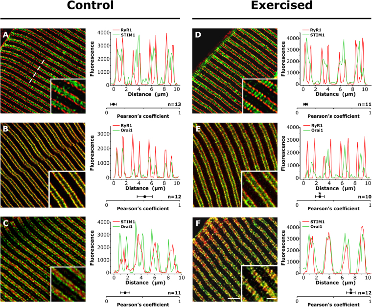 Co-localization between STIM1 and Orai1, low in control samples, increases significantly following exercise. Representative immunofluorescence images obtained from EDL fibers double-labeled for RyR1-STIM1 ( A and D ), RyR1-Orai1 ( B and E ), and STIM1-Orai1 ( C and F ). Each panel also contains a fluorescence intensity profile along 4 sarcomeres (see dashed line in A ) and the Pearson's correlation coefficient value, a measure of covariance of pixel intensities, given as the mean ± SEM; *p