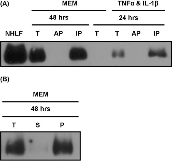 Thy-1 in the Conditioned Media of Normal Human Lung Fibroblasts is insoluble (A)  CM was collected from CCL-210 provided either MEM or 20ng/mL TNFα and IL-1β in MEM for 24 to 48 hrs. Using Triton X-114, concentrated CM was partitioned into an aqueous (AP) and insoluble phase (IP). Mature Thy-1 detected by western blot in the CE of NHLF or partitioned and pre-partitioned CM by western blot using K117.  (B)  CM was collected from CCL-210 provided MEM 48 hrs. CM was submitted to differential centrifugation of 1,200 × g and 21,000 × g then precipitated with methanol. Mature Thy-1 was detected in the precipitated material of total (T) prior to, supernatant (S) after, and pellet (P) after 21,000 × g by western blot using K117.