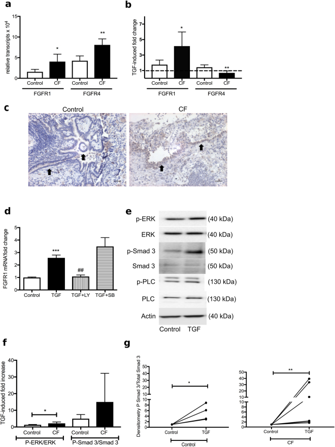 TGF-β induced upregulation of FGFR1 in CF-HBECs. ( a ) FGFR1 and <t>FGFR4</t> mRNA levels in HBECs from nonsmokers and CF patients at baseline and ( b ) after stimulation with TGF-β (10 ng/mL) for 24 hours. ( c ) Immunohistochemistry staining with anti-FGFR1-HRP and hematoxylin eosin counterstain of whole lung sections from one control patient (non-smoker) compared to a CF patient (20X, scale bars are 40 μm): staining of the bronchial epithelium (arrows) was detected and increased in the CF lung section (representative specimen from a total of 4 lungs in each group). ( d ) FGFR1 mRNA levels of CF-HBECs, exposed to TGF-β for 24 hours (10 ng/mL) ± LY2157299 (10 μM) or SB203580 (10 μM). ( e ) Representative immunoblots are shown after stimulation of CF-HBEC with TGF-β (30–90 min, 10 ng/ml): increased Smad 3 and increased ERK phosphorylation were seen without changes in PLCγ phosphorylation. ( f ) Bar graphs showing densitometric analysis of TGF-β induced fold changes in phospho ERK/total ERK and phospho Smad 3/total Smad 3 ratios in control HBECs (n = 5) compared to CF-HBEC (n = 6). ( g ) Dot plot indicating densitometric changes in phospho Smad/ total Smad 3 ratios in HBECs and CF-HBECs when untreated and TGF-β treated, shown as fold change increase using unpaired t-test and Mann-Whitney post test. Data is presented as means ± S.E. with *P