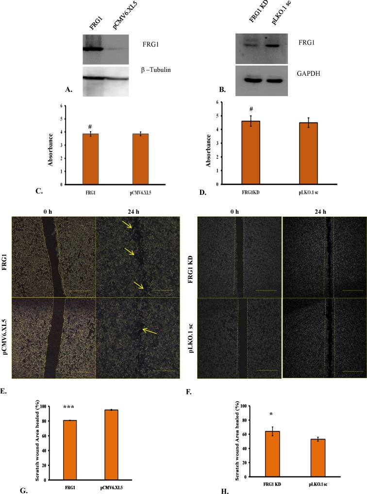 Effect of FRG1 expression on <t>HEK293T</t> cell proliferation and scratch wound healing ( A ) Shows Western blot to confirm ectopic expression of FRG1 in HEK293T. ( B ) Shows verification of reduced FRG1 levels after RNAi silencing in HEK293T, by Western blot. ( C ) Represents measurement of cell proliferation in HEK293T with ectopic expression of FRG1 compared with empty vector control (pCMV6.XL5), by MTS reagent. ( D ) Represents measurement of cell proliferation in HEK293T with knockdown of FRG1 compared with scrambled vector control (pLKO1.sc), by MTS reagent. ( E ) Shows representative images of scratch wound healing assay of HEK293T cells with ectopic expression of FRG1 and respective vector control (pCMV6.XL5). ( F ) Shows representative images of scratch wound healing assay of HEK293T with FRG1 knockdown and respective scrambled vector control (pLKO1.sc). ( G ) Represents representative graph for scratch wound healing assay of HEK293T cells with ectopic expression of FRG1, compared with empty vector control (pCMV6.XL5). ( H ) Shows representative graph for scratch wound healing assay of HEK293T cells with FRG1 knockdown, compared with empty vector control (pLKO1.sc). # represents P > 0.05 , * represents P