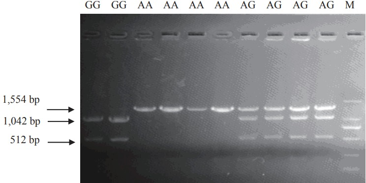 The three different Taq I PCR-RFLP genotypes of pCISH gene. The genotypes (AA, AG, GG) are shown at the top. M: DNA molecular marker DL2000. PCR-RFLP, polymerase chain reaction–restriction fragment length polymorphism; pCISH, porcine cytokine inducible SH2-containing protein.