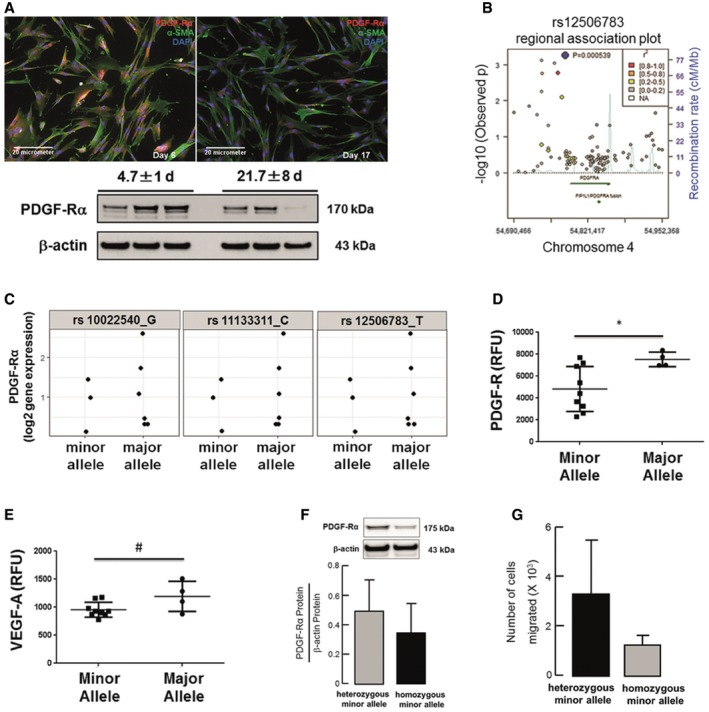 """Enrichment of PDGF ‐Rα SNP s associated with reduced protein levels and migration of lung fibroblasts from ventilated preterm infants developing nCLD Decreased PDGF‐Rα expression in human lung fibroblasts (hMFBs) from preterms undergoing MV‐O 2 (21.7 ± 8 vs. 4.7 ± 1 day of life; serial samples 2 5, 3 6; n = 3 patients/group). Regional association plot showing −log10 P ‐values ( y ‐axis) of SNPs according to chromosomal positions ( x ‐axis). Light blue: estimated recombination rate (cM/Mb, HapMap CEU population); blue: most significant SNP (rs12506783); red: r 2 ≥ 0.8; orange: 0.8 > r 2 ≥ 0.5, yellow: 0.5 > r 2 ≥ 0.2, gray: 0.2 > r 2 ≥ 0. P ‐values were determined using R by case‐control analysis with a logistic regression model including case/control status, sex, gestational age at birth, status """"small for gestational age"""", and country of origin of the mother. Analysis was adjusted for relatedness to account for multiple births (R‐package GenABEL). Levels of PDGF‐Rα gene expression in patients ( n = 9), which are carrying at least one SNP (minor allele) compared to patients with no SNPs (major allele). Major alleles are given in the figure labels. Minor alleles in rs10022540 are A, in rs11133311 are T, and in rs12506783 are C . PDGF‐R (D) and VEGF‐A (E) protein levels in separate patient cohort ( n = 13) carrying at least one SNP (minor allele) at position rs12506783 compared to patients with no SNPs (major allele). Protein levels were quantified using SOMAlogic technique. Data are presented as mean ± SD. Two‐tailed unpaired Student's t ‐test (* P = 0.0336; # P = 0.0863). Representative PDGF‐Rα levels (F) and migratory potential assessed by Boyden chamber assay (G) in fibroblasts isolated from tracheal aspirates of patients with nCLD. The fibroblast carrying SNP at both alleles (homozygote minor allele) displayed reduced PDGF‐Rα levels and migration when compared to fibroblasts from patients carrying SNP at one allele (heterozygote minor allele). Data are presented """