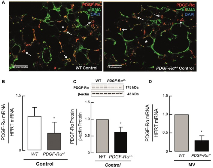 Reduced PDGF ‐Rα abundance in PDGF ‐Rα haploinsufficient mice Double staining for PDGF‐Rα (red) and α‐SMA (green) showed a co‐localization of these two proteins as well as a reduced number of double‐positive cells (white arrows) in 5–8‐day‐old PDGF‐Rα +/− mice (right panel) when compared to PDGF‐Rα +/+ (WT) littermates (left panel). * represents alveolar air space. (B) Quantitative RT–PCR and (C) immunoblot analysis showing reduced PDGF‐Rα protein and mRNA expression in lungs of PDGF‐Rα +/− newborn mice when compared to WT littermates ( n = 4/group). Reduced PDGF‐Rα transcript in newborn PDGF‐Rα +/− mice upon MV‐O 2 for 8 h when compared to WT littermates ( n = 3 mice/group). Data information: In (B–D), the data are presented as mean ± SD. * P