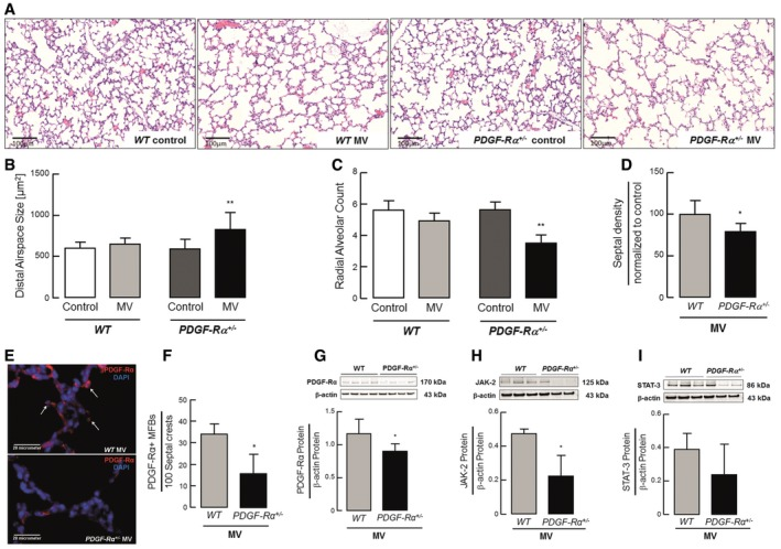 PDGF ‐Rα haploinsufficiency drives the air sac pathology of nCLD in neonatal mice undergoing MV ‐O 2 Representative lung tissue sections (200×) from 5–8‐day‐old PDGF‐Rα +/+ (WT) and PDGF‐Rα +/− mice after 8 h of MV‐O 2 showing increased air space size compared to respective controls (O 2 ‐control) spontaneously breathing 40% O 2 for 8 h. Quantitative analysis of lung tissue sections showed increased alveolar area after 8 h of MV‐O 2 in PDGF‐Rα +/− mice, whereas no significant change was observed in WT mice when compared to respective controls ( n = 6–11 mice/group). Radial alveolar counts (alveolar number) in lung tissue sections from WT and PDGF‐Rα +/− mice were reduced after 8 h of MV‐O 2 when compared to respective controls ( n = 6–11 mice/group). Septal density was significantly reduced in PDGF‐Rα +/− mice when compared to WT littermates after 8 h of MVO 2 ( n = 6–8 mice/group). Immunofluorescence staining (400×, merged) for PDGF‐Rα (red, white arrows; blue: DAPI) with decreased stain from the septal crests in lungs of ventilated PDGF‐Rα +/− (lower panel) and WT (upper panel) mice undergoing MV‐O 2 . Quantitative analysis of the immunofluorescence images showed reduced number of PDGF‐Rα + myofibroblasts located at the septal crests (presented myofibroblasts number per 100 septal crests; 10 fields of view in PDGF‐Rα and α‐smooth muscle actin co‐stained sections/animal, 4 animals/group). Immunoblot analysis of PDGF‐Rα (G) and its downstream proteins JAK‐2 (H) and STAT‐3 (I) showing a significant reduction in protein level in PDGF‐Rα +/− neonatal mice in contrast to WT mice after MV‐O 2 for 8 h ( n = 3 mice/group). PDGF‐Rα levels are displayed as fold change of control. Panels (H) and (I) are from same blot hence having same β‐actin bands. Data information: In (B–D) and (F–I), data are presented as mean ± SD. ** P