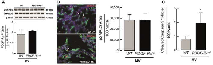 Similar TGF ‐β activation with increased apoptosis in lungs of newborn PDGF ‐Rα haploinsufficient mice after MV ‐O 2 for 8 h Immunoblot analysis showing similar pSMAD levels in whole lung homogenate of newborn WT as well as PDGF‐Rα +/− mice ( n = 3 mice/group). Representative immunofluorescence image showing similar pSMAD levels (red) in both newborn WT (upper panel) and PDGF‐Rα +/− mice (lower panel). α‐SMA is in green, and nucleus is stained with DAPI (blue). Quantification of the image showing pSMAD‐2 area to 100 nuclei ( n = 3–4 mice/group, 4 sections/mice, 10 images/section). Increased apoptosis quantified by cleaved caspase‐3 + nuclei normalized to 100 nuclei in newborn PDGF‐Rα +/− compared to WT mice ( n = 4 mice/group). Data information: In (A–C), data are presented as mean ± SD. Statistical test is two‐tailed unpaired Student's t ‐test (* P = 0.0159).