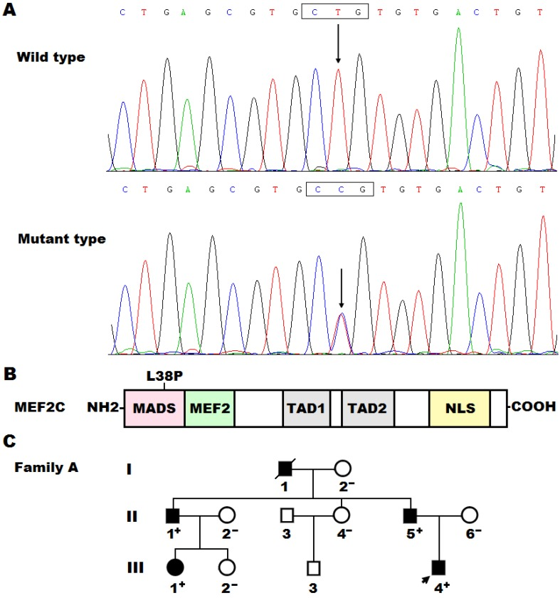 "A novel <t>MEF2C</t> mutation associated with congenital heart disease. (A) <t>DNA</t> sequence chromatograms displaying the heterozygous MEF2C mutation and its corresponding wild-type control. The arrow points to the heterozygous nucleotides of T/C in the proband (mutant type) or the homozygous nucleotides of T/T in a control individual (wild type). The rectangle marks the nucleotides comprising codon 38 of MEF2C . (B) Schematic diagram delineating the structural domains of the MEF2C protein and the location of the mutation involved in congenital heart disease. The mutation identified in patients with congenital heart disease is shown above the structural domains. NH2, amino terminus; MADS, MCM1, agamous, deficiens, serum response factor; MEF2, myocyte enhancer factor 2; TAD1, transcriptional activation domain 1; TAD2, transcriptional activation domain 2; NLS, nuclear localization signal; COOH, carboxyl terminus. (C) Pedigree structure of the family with congenital heart disease. The family was designated as family A. Family members are recognized by generations and numbers. Square indicates male family member; circle, female member; closed symbol, affected member; open symbol, unaffected member; arrow, proband; ""+"", carrier of the heterozygous missense mutation; ""-"", non-carrier."