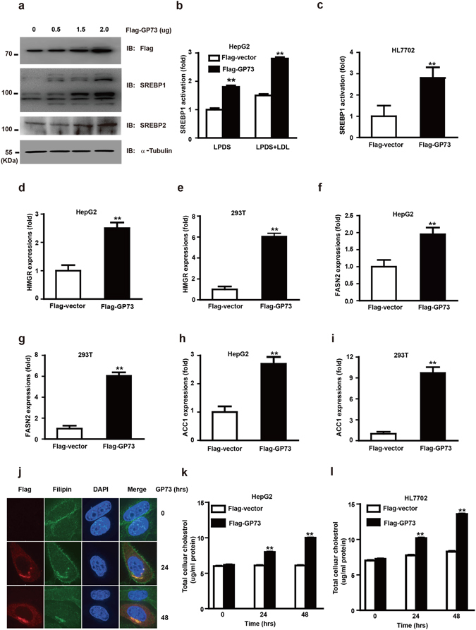 GP73 regulates the transcriptional activity of SREBPs and lipogenesis. ( a ) Immunoblotting analysis of SREBPs activation in HepG2 cells transfected with Flag-GP73 at the indicated doses. α-Tubulin was used as equal loading control. ( b , c ) SREBP-1 promoter activity in HepG2 ( b ) or HL7702 ( c ) cells transfected with Flag-vector or Flag-GP73 under conditions of sterol depletion or repletion. The luciferase activity was measured 36 hrs post transfection. The value was normalized with the corresponding transfection efficiency. ( d , f , h ) QRT-PCR analysis of HMGR ( d ), FASN2 ( f ), and ACC1 ( h ) mRNA abundance in HepG2 cells transfected with Flag-vector or Flag-GP73 for 24 hrs. ( e , g , i ) QRT-PCR analysis of HMGR ( e ), FASN2 ( g ), and ACC1 ( i ) mRNA abundance in 293T cells transfected with Flag-vector or Flag-GP73 for 24 hrs. ( j ) Fluorescence microscopy of <t>Filipin</t> staining in HepG2 cells transfected with Flag-GP73. Cells were collected at indicated hrs post transfection. ( k , l ) Amplex Red cholesterol assay of cellular cholesterol concentrations in HepG2 ( k ) or HL7702 ( l ) cells transfected with Flag-vector or Flag-GP73. Cells were collected at indicated hrs post transfection. Values were normalized to total cell proteins from control cells transfected with Flag-vector. Cell-based studies were performed at least <t>three</t> independent times with comparable results. Data represent mean ± SEM. Student's t test was used for statistical analysis: **p