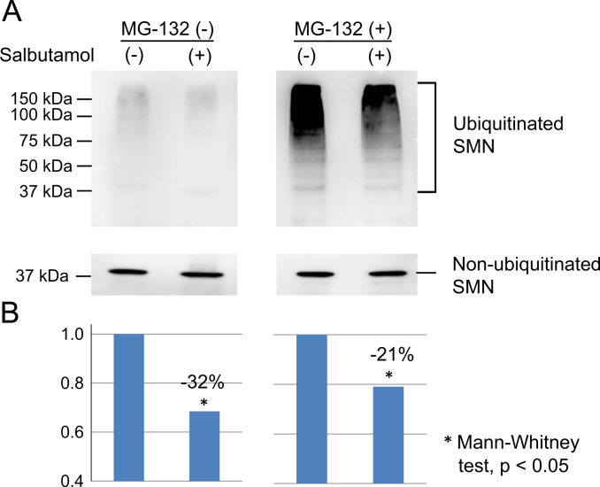 Co-immunoprecipitation (co-IP) experiments in HeLa cells. Ubiquitinated SMN protein was determined by co-IP using anti-SMN antibody. (A) Ubiquitinated SMN extracted by co-IP. HeLa cells were incubated with salbutamol sulfate (20 µM) for 24 h in the presence or absence of the proteasome inhibitor, MG132 (5 µM). SMN ubiquitination was reduced in HeLa cells treated with salbutamol, in the presence or absence of MG132. (B) Quantification of ubiquitinated SMN levels. The amount of ubiquitinated SMN at the mock status (not treated with salbutamol) was normalized to 1.0 in each MG132 group (in the presence or absence of MG132). The mean ubiquitinated SMN amount decreased by 20–30 percent after salbutamol treatment.