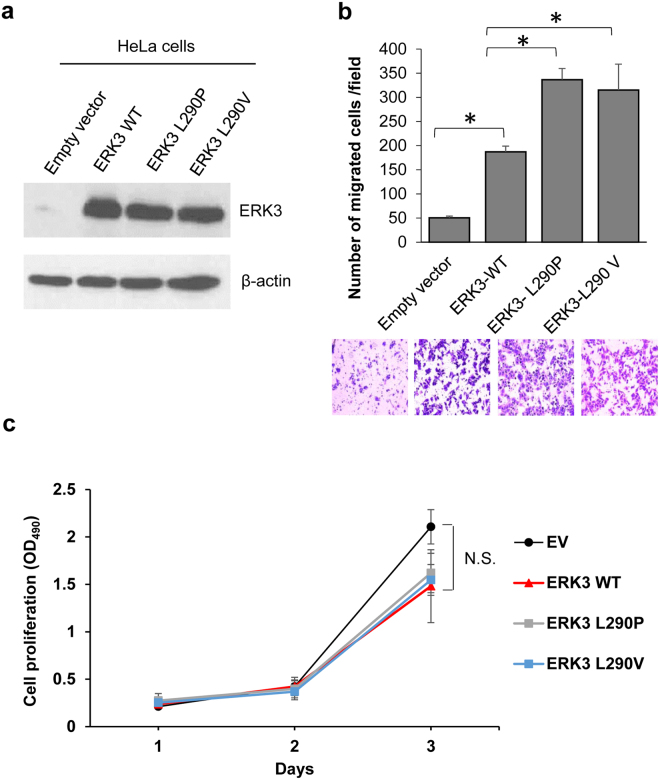 Both ERK3 L290P and ERK3 L290V mutants have increased ability to promote HeLa cell migration as compared to wild type ERK3. ( a ) Western blot analysis of ERK3 and ERK3 mutants' expression in HeLa cells transfected with either a pSG5 empty vector, wild type ERK3 (ERK3 WT), or each ERK3 L290 mutant as indicated. β-actin was used as a loading control. ( b ) The effect of L290P/V mutations on ERK3's role in HeLa cell migration. HeLa cells were transfected with each different pSG5 plasmid as indicated. Two days post-transfection, cell migration was analyzed using a two-chamber transwell system. Migrated cells were stained with crystal violet, photographed and counted under a microscope at 50X magnifications. Quantitative results are presented as the number of migrated cells per field. Values in the bar graph represent mean ± S.D. of 3 separate experiments. *P