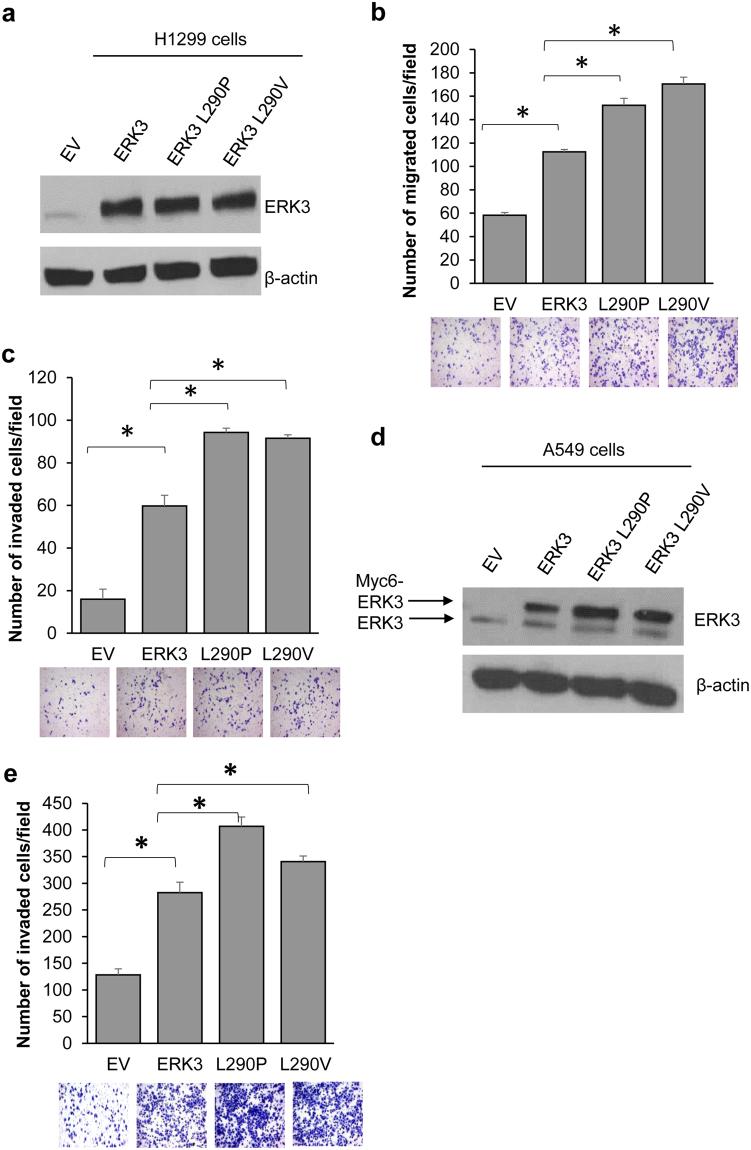Both ERK3 L290P and L290V mutants have increased ability to promote lung cancer cell migration and invasion. ( a ) Western blot analysis of ERK3 and ERK3 mutants' expression in H1299 cells transfected with an empty vector (EV), ERK3 wild type (ERK3), ERK3 L290P or ERK3 L290V plasmids as indicated. β-actin was used as a loading control. ( b ) The effect of L290P/V mutations on ERK3's role in H1299 cell migration was analyzed by two-chamber transwell migration assay of H1299 cells transfected with an EV, wild type ERK3 or each of the ERK3 L290 mutants. Representative images are shown at the bottom. Quantitative results are presented as number of migrated cells per field. Values in bar graph represent mean ± S.D. of 3 separate experiments. *P