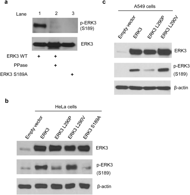 L290P mutation leads to a decrease in S189 phosphorylation of ERK3 protein, whereas L290V mutation has no clear effect. ( a ) Characterization of a phospho-S189 specific ERK3 antibody. 293 T cells were transfected with wild type ERK3 (ERK3 WT) or ERK3 S189A. Total cell lysates were treated with or without λ phosphatase (PPase). Phosphorylation of ERK3 at S189 [p-ERK3 (S189)] and expression level of ERK3 were determined using a phospho-S189 specific ERK3 antibody and an ERK3 antibody, respectively. ( b and c ) Western blot analysis of ERK3 phosphorylation at S189 in HeLa cells ( b ) and in A549 cells ( c ). Cells were transected with a pSG5 empty vector, HA-tagged wild-type ERK3, or each of the ERK3 mutants as indicated. Two days post-transfection, cells were lysed and levels of total ERK3 and ERK3 phosphorylated at S189 were analyzed by Western blotting. β-actin was used as a loading control.